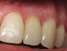 Periodontal_treatment