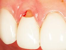 gingival dentistry las vegas