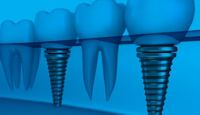 Dental posts las vegas