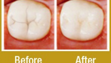 Dental sealants in las vegas