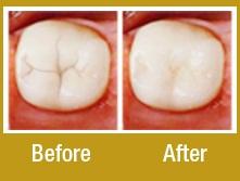 Dental sealants in las vegas