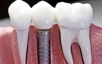 Dental Implants for me?