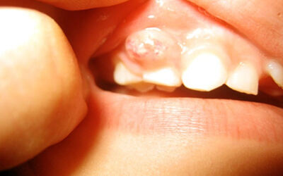 Tooth Abscesses