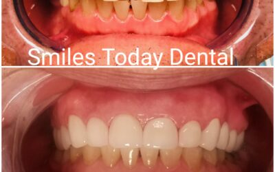 Dental Crowns Smile